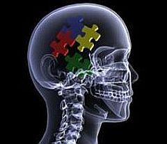 Brain-conceptual-image-puzzle